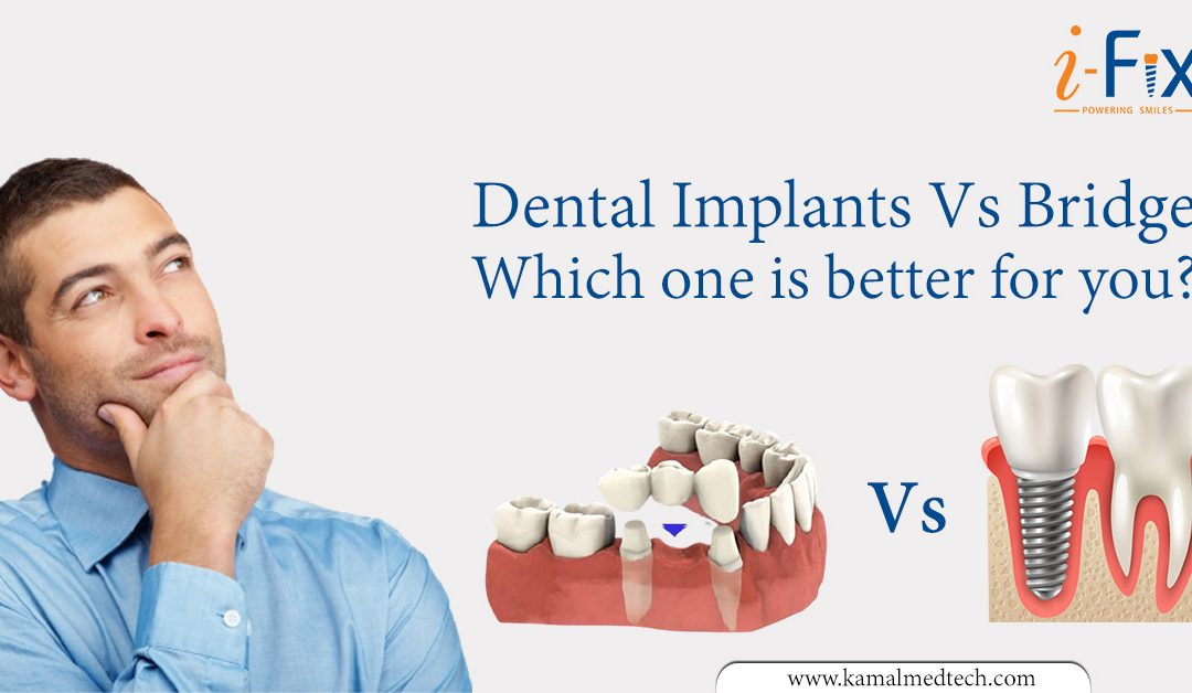 Dental Implants Vs Bridge – Which one is better for you?