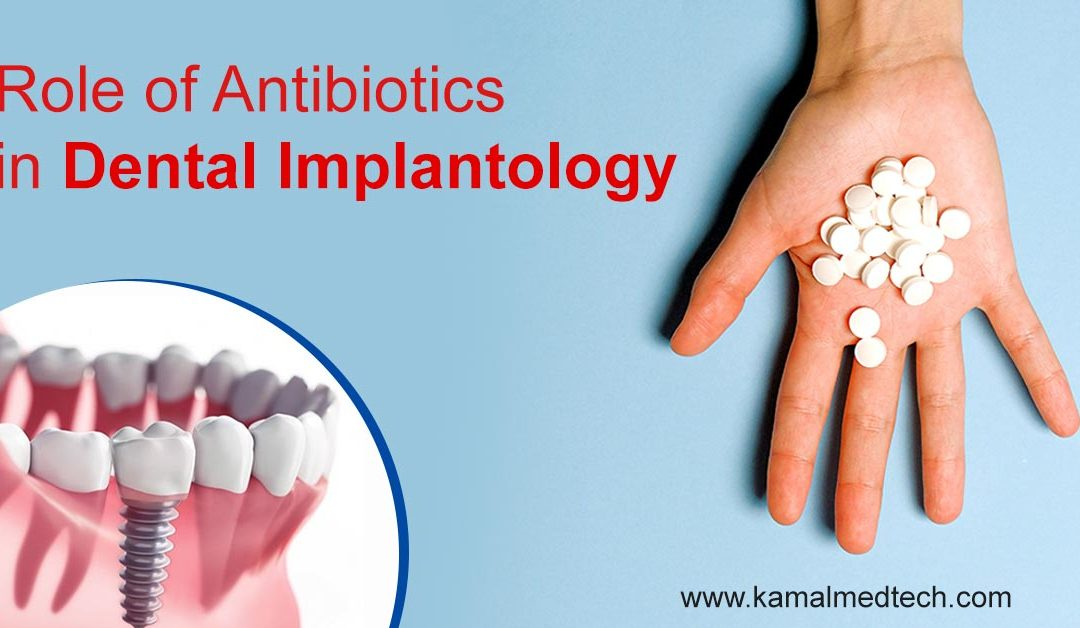 Role and Issues Related to Antibiotics use in Dental Implant Success and Failures