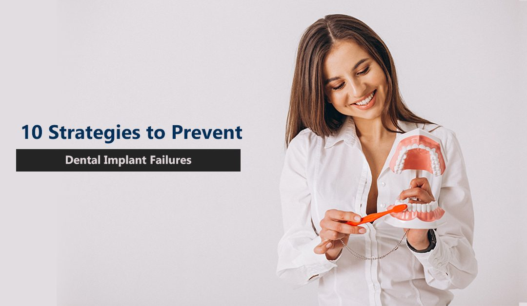 Best 10 Strategies to Prevent Dental Implant Failure and Keep Your Dental Implant Healthy