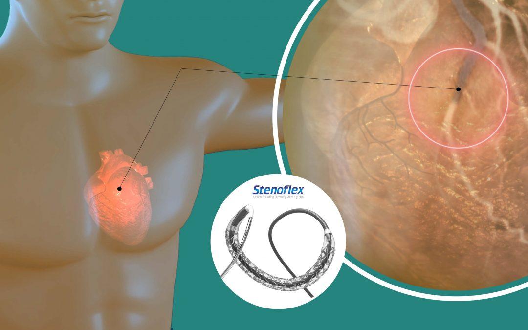Coronary Angioplasty and Stenting Procedure