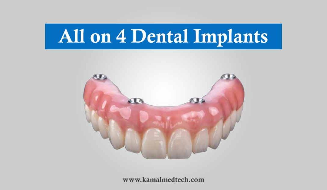 What are All-on-4 Dental Implants in Implant Dentistry? | i-Fix Implants