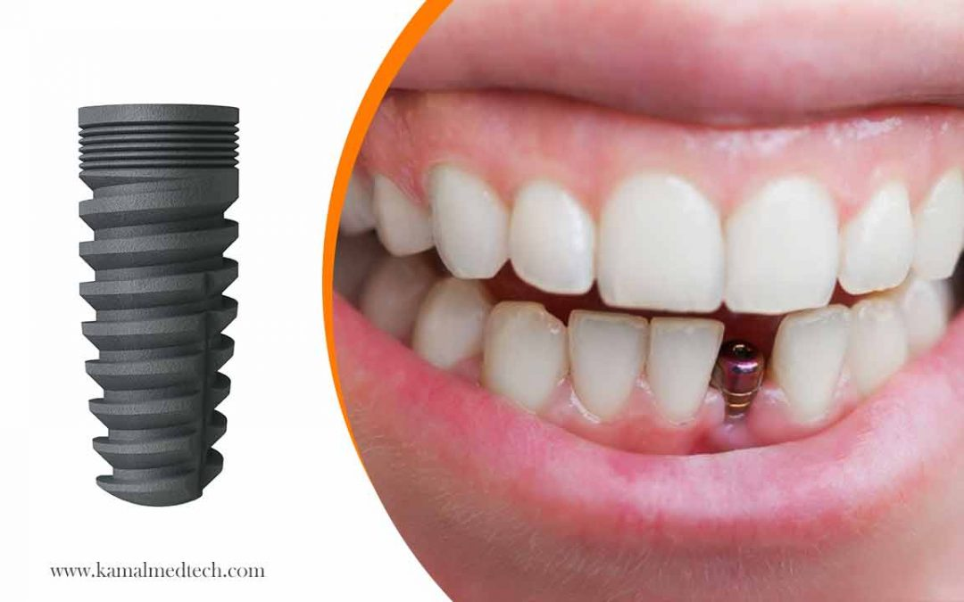 Dental Implant Surgery Recovery | i-Fix Implant