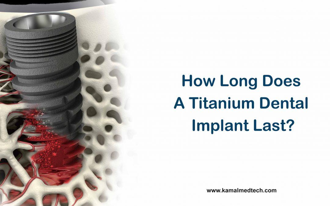 How Long Does a Titanium Dental Implant Last? | i-Fix Implant